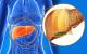 Karaciğer yağlanmasına karşı 8 etkili önlem